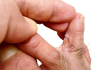 athletes foot on hands treatment